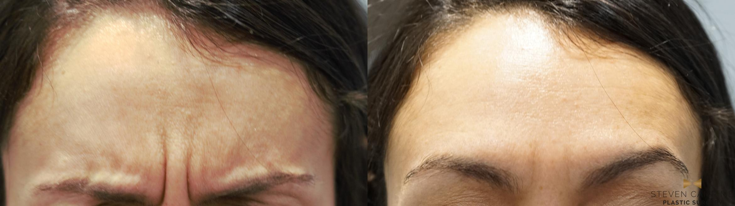 BOTOX Before & After Photo | Fort Worth, Texas | Steven Camp MD Plastic Surgery