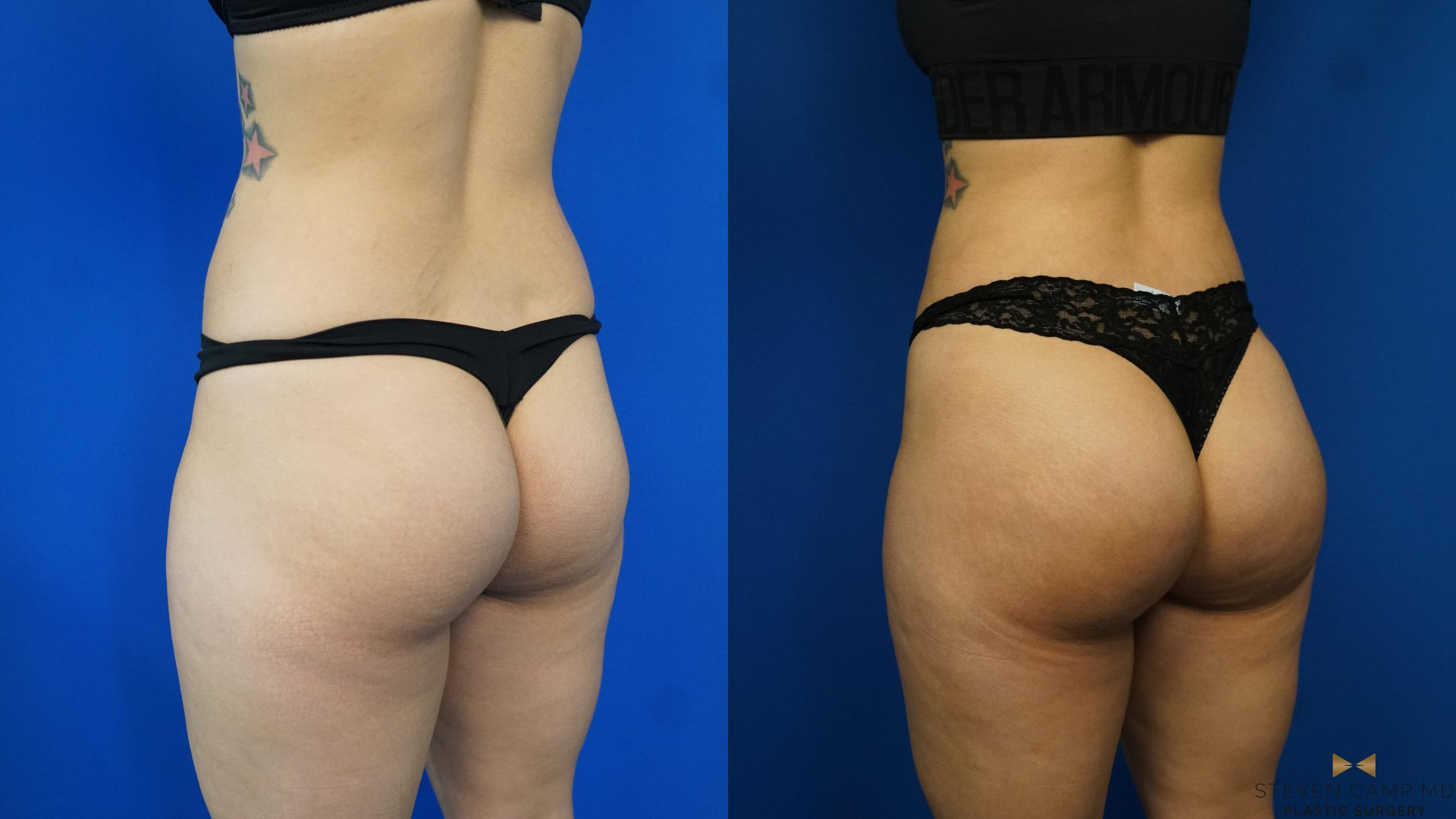 Brazilian Butt Lift Before & After Photo | Fort Worth, Texas | Steven Camp MD Plastic Surgery