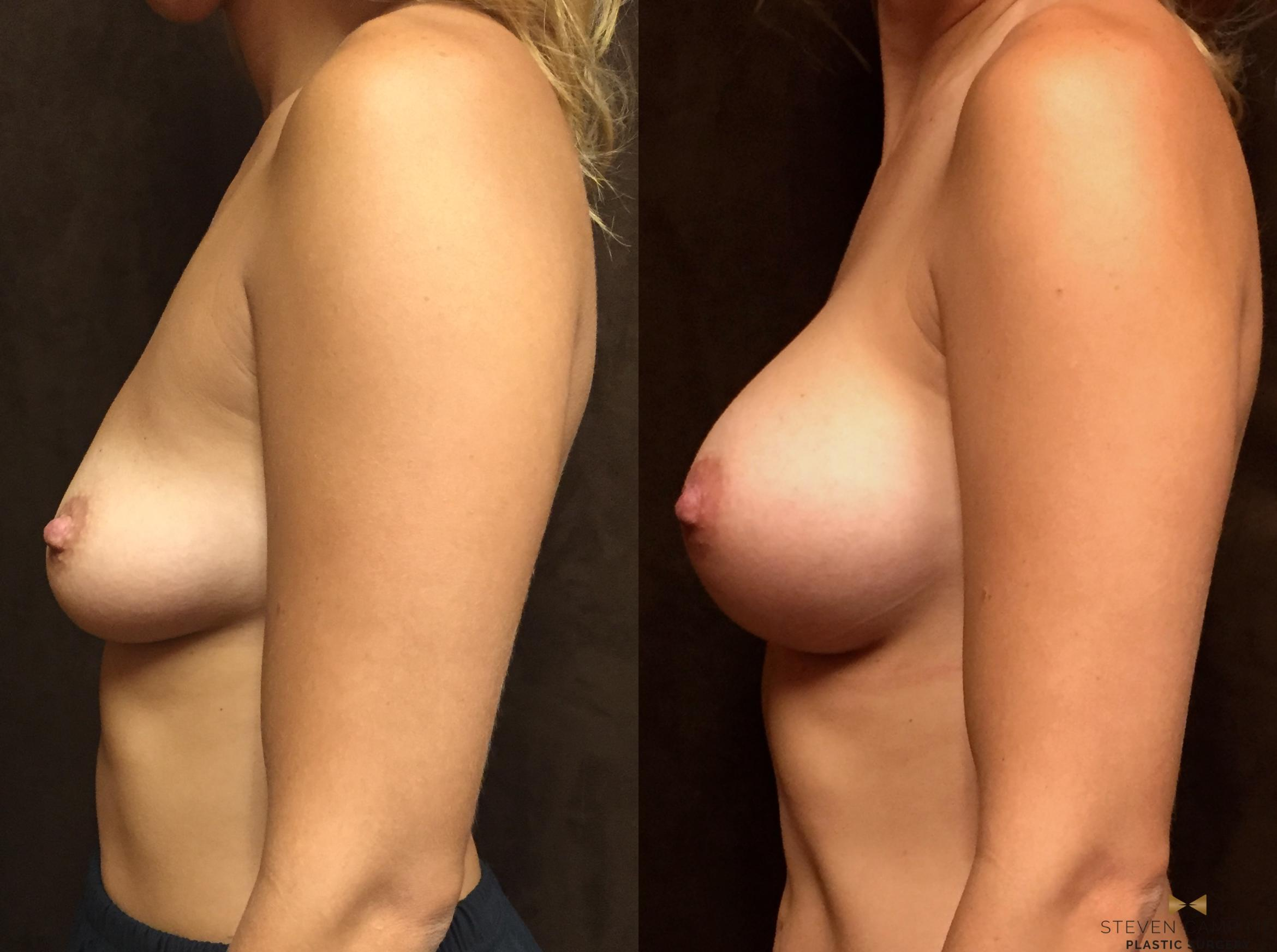 Breast Augmentation Before & After Photo | Fort Worth, Texas | Steven Camp MD Plastic Surgery