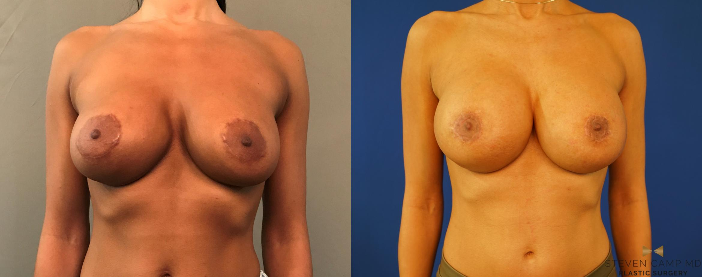 Breast Augmentation Revision Before & After Photo | Fort Worth, Texas | Steven Camp MD Plastic Surgery