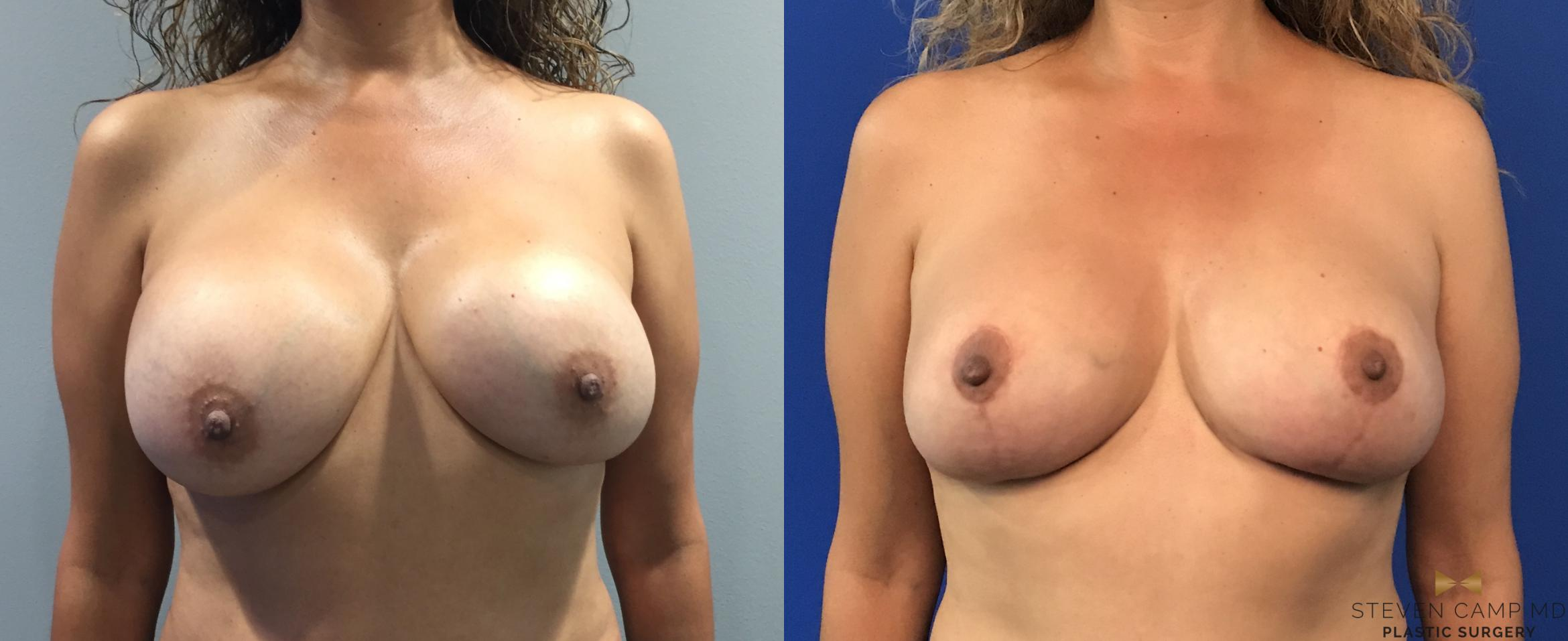 Breast Implant Exchange, Mastopexy Before & After Photo | Fort Worth, Texas | Steven Camp MD Plastic Surgery
