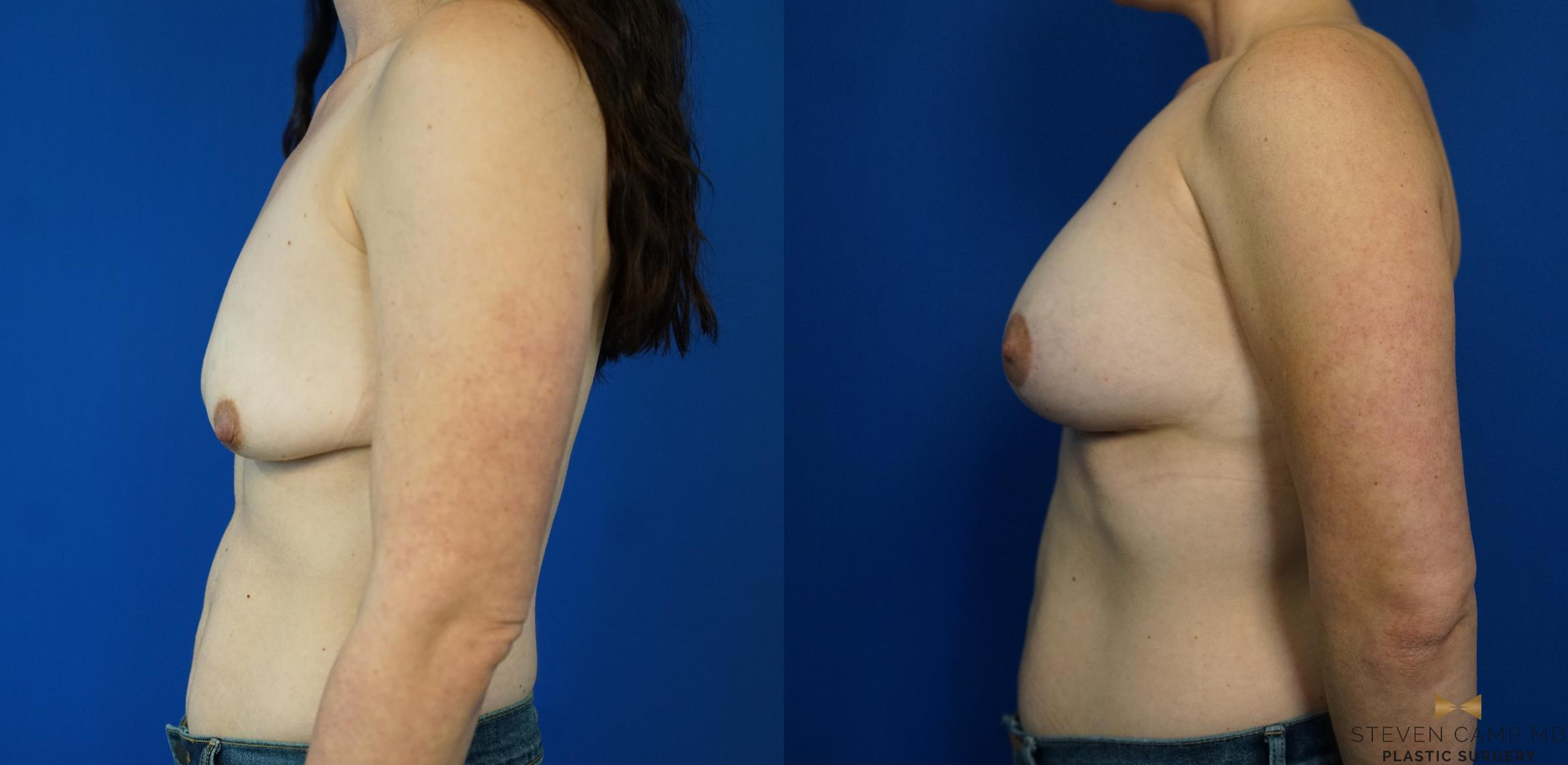 Breast Lift Before & After Photo | Fort Worth, Texas | Steven Camp MD Plastic Surgery