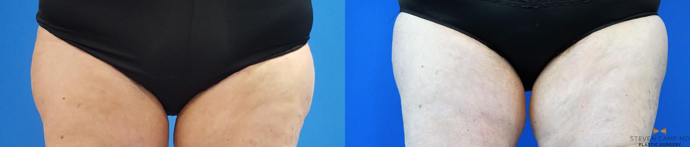 CoolSculpting Before & After Photo | Fort Worth, Texas | Steven Camp MD Plastic Surgery