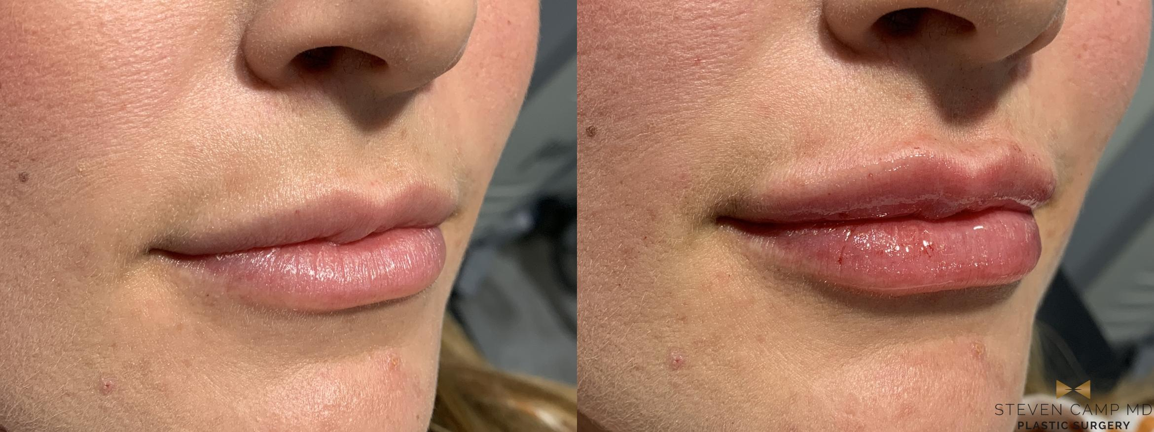 Dermal Fillers Before & After Photo | Fort Worth, Texas | Steven Camp MD Plastic Surgery