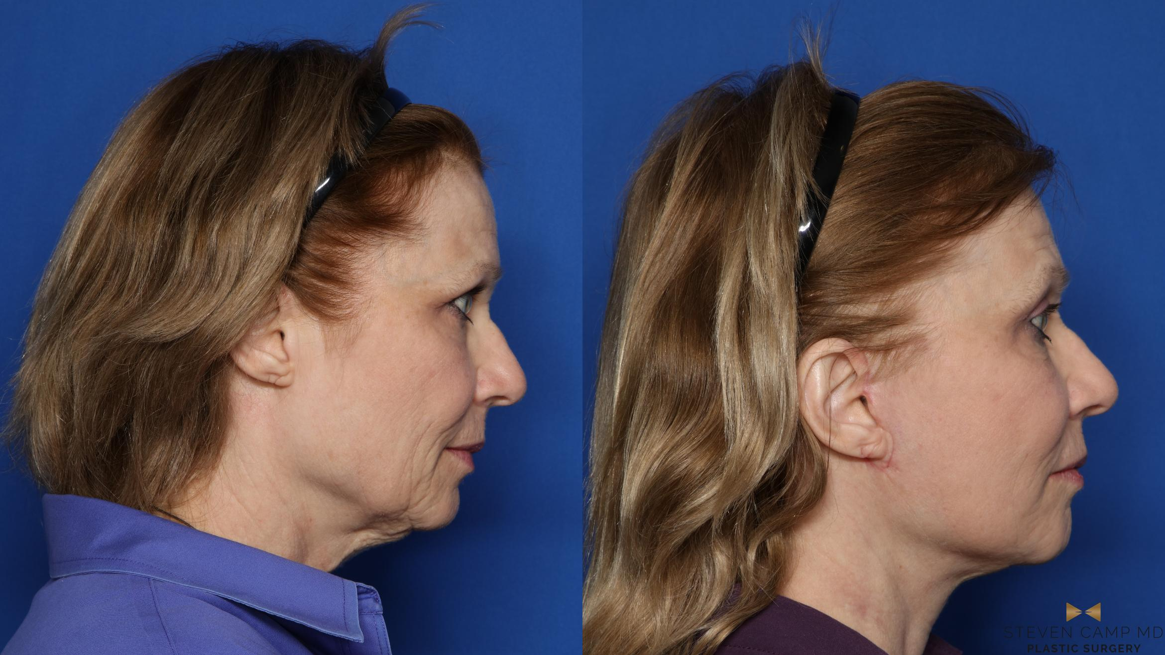 Facelift Before & After Photo | Fort Worth, Texas | Steven Camp MD Plastic Surgery