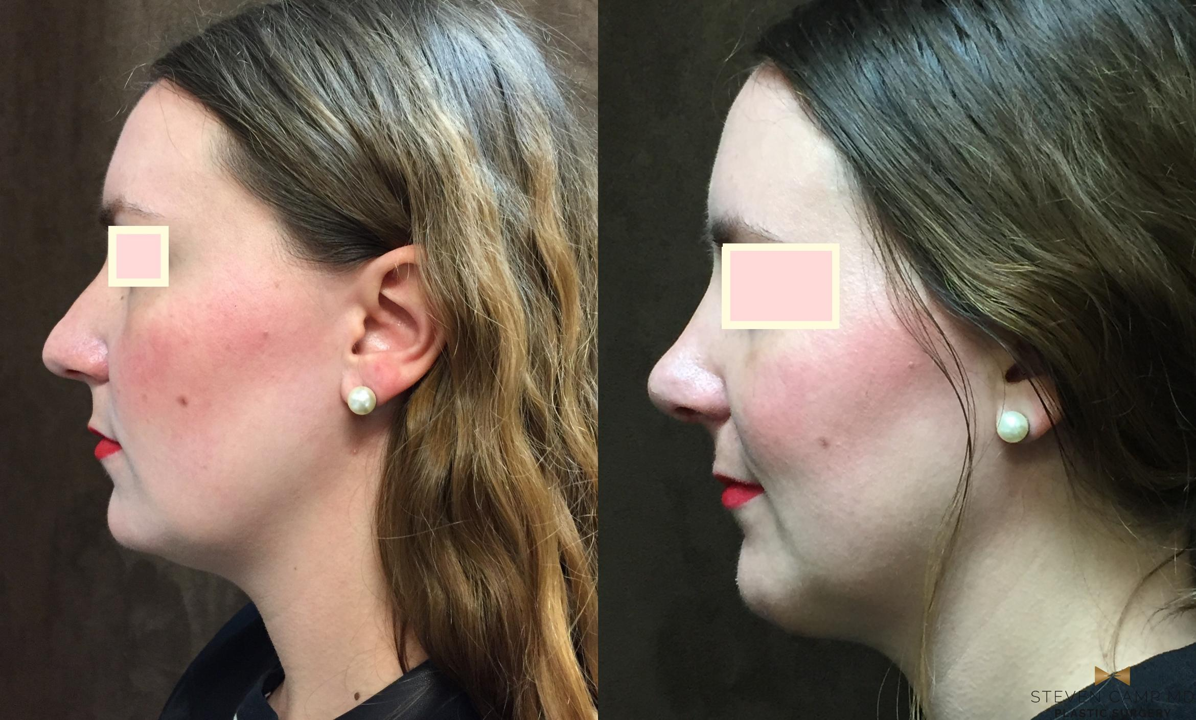 Rhinoplasty Before & After Photo | Fort Worth, Texas | Steven Camp MD Plastic Surgery