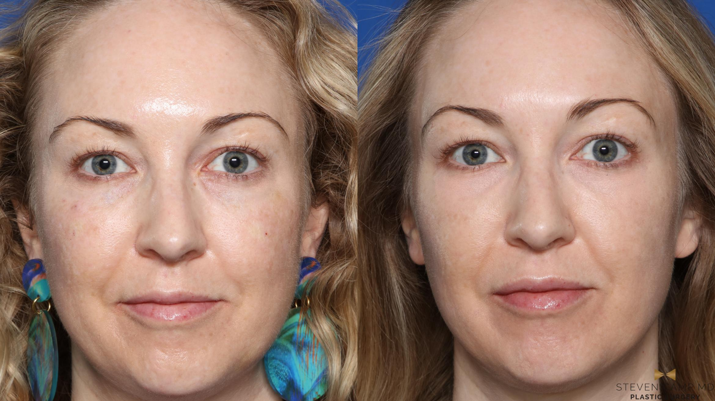 Sciton Laser Before & After Photo | Fort Worth, Texas | Steven Camp MD Plastic Surgery