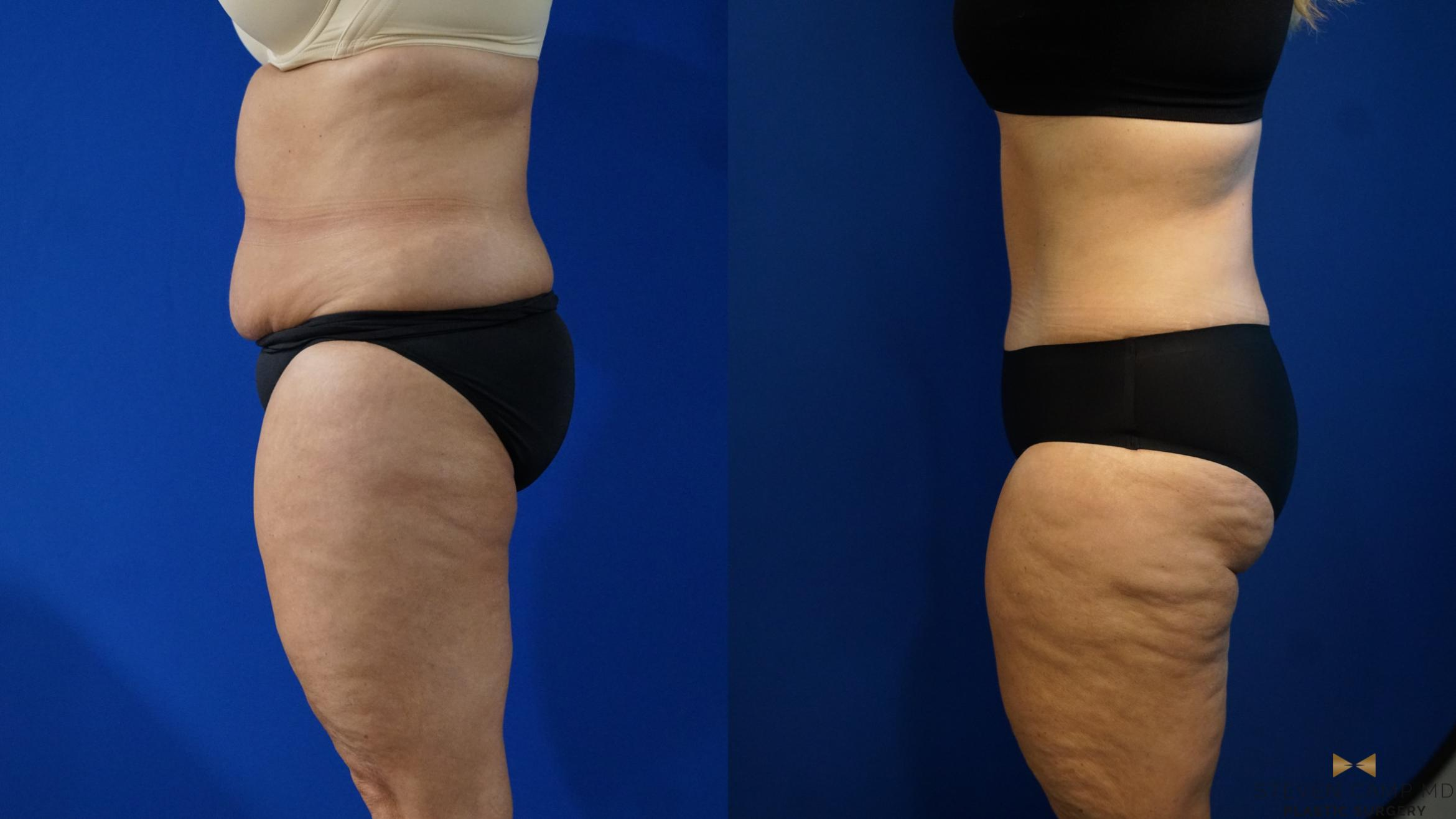 Tummy Tuck Before & After Photo | Fort Worth, Texas | Steven Camp MD Plastic Surgery