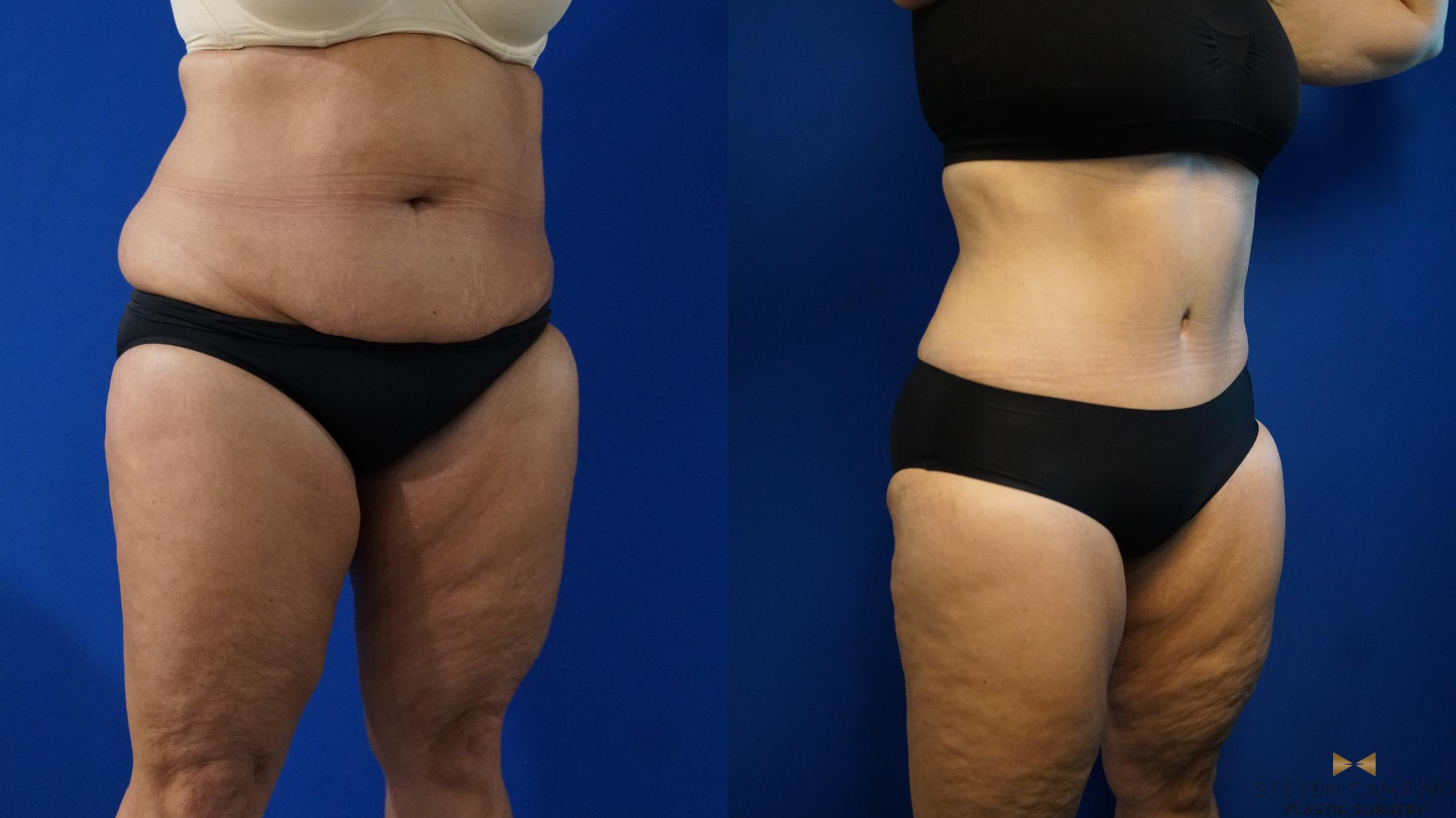 Tummy Tuck Before & After Photos Patient 321 | Fort Worth ...