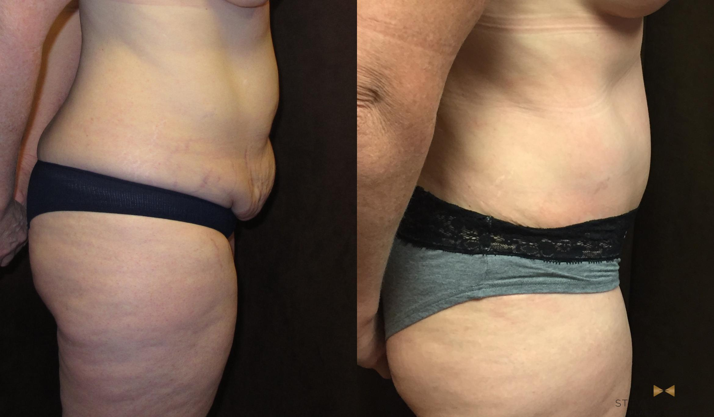 At 46 This Mother Of 2 Looks Great After Tummy Tuck And Liposuction Surgery