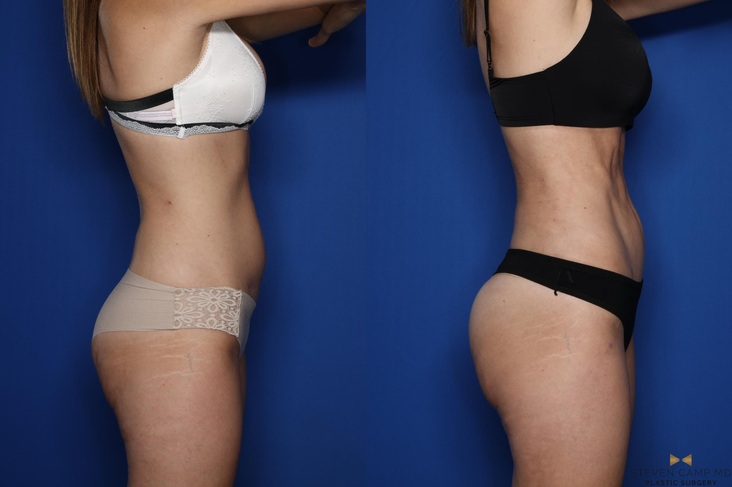 Liposuction Before & After Photo | Fort Worth, Texas | Steven Camp MD Plastic Surgery